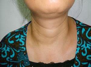 甲状腺功能减退症