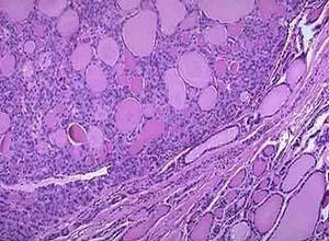 透明细胞汗腺腺瘤