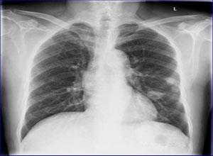 肺隐球菌病