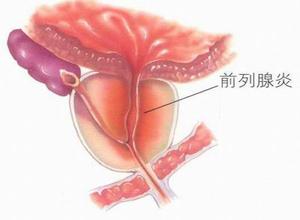 什么是前列腺炎