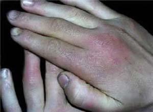 手足发绀症