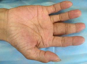 化脓性腱鞘炎