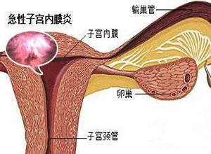 急性子宫内膜炎