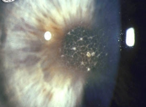 丝状角膜病变