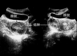 原发性输卵管癌