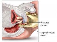 非淋性前列腺炎