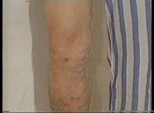 类固醇后脂膜炎