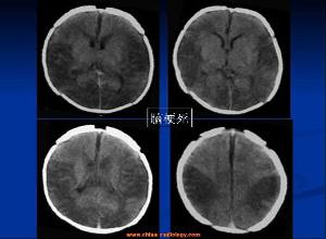 短暂性大脑缺血性发作