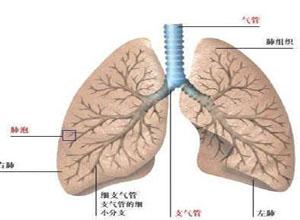 支气管扩张