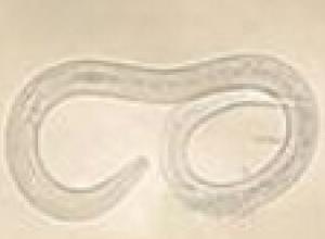 钩虫性十二指肠炎综合征