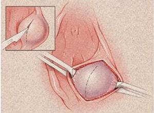 前庭大腺脓肿