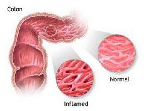 慢性结肠炎