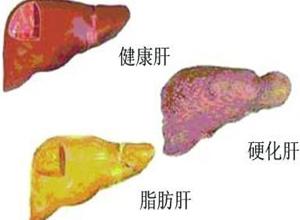 中度脂肪肝