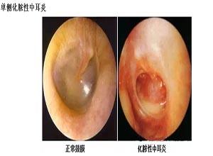 化脓性中耳炎