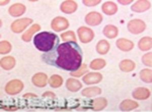 传染性单核细胞增多症