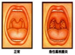 急性扁桃体炎