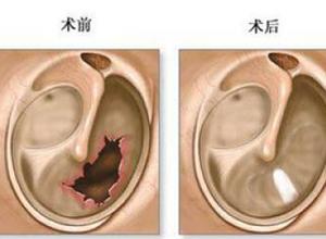分泌性中耳炎