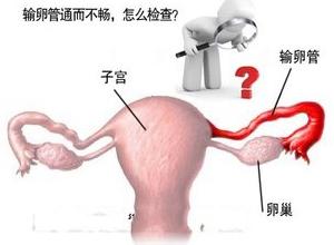 输卵管阻塞