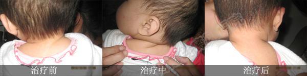 婴儿有白斑