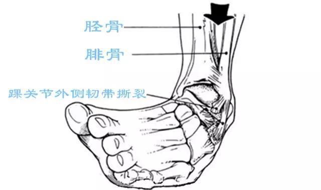 脚韧带结构图解