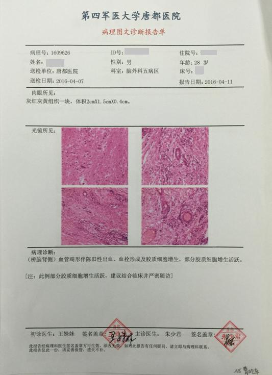 显微手术成功治愈桥脑背侧海绵状血管瘤伴出血患者