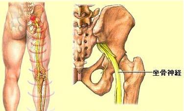 坐骨神经痛要如何调养?