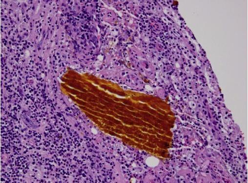 术中发现胃左上部位炎症病变明显,网膜和胃壁粘连.