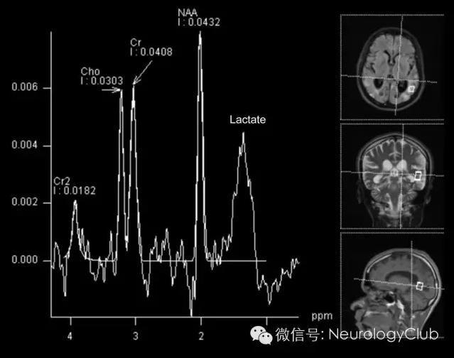 (图3:MRS提示病灶处脂质峰和乳酸峰升高) 最终诊断 线粒体脑肌病伴高乳酸血症和卒中样发作(MELAS) 讨论 MRI黑水像(图1A)可见双侧顶枕区不对称的异常高信号。相应的DWI(图1B)上可见病灶弥散受限,而ADC呈低信号(图未放),提示右侧顶枕区急性梗死,而左侧顶枕区应为先前梗死病灶。锝-99m SPECT灌注扫描可见左侧顶枕区灌注缺损(图2)。 本例年轻男性,依次出现的多发病灶位于不同的血管分布区,提示栓子来源。然而,患者心脏检查,血栓形成筛查和血管影像学均无明显异常。在本例隐源性卒中综合征中