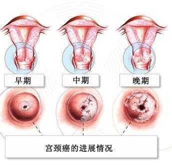 宫颈口有小硬疙瘩图片_多次流产易诱发宫颈癌 预防宫颈癌有四招