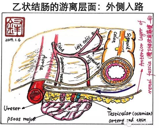图(1):乙状结肠的解剖层面 在CME的理念下,在腹腔镜下乙状结肠癌根治性切除术中,我们应该注意以下三个手术要点。 一、入路的选择 在腹腔镜下行乙状结肠根治性切除术中,应首选中央入路。操作之初,以骶骨岬作为起始点,由尾侧向头侧、以肠系膜下动脉(IMA)为解剖标志,沿着左侧Toldt间隙的右侧黄白交界线(即右侧Toldt线)进行分离。 按照上述的入路操作方法,便于左侧Toldt间隙的辨认和正确手术层面的进入。 二、平面的维持 在左侧Toldt间隙的拓展过程中,我们始终应该以光滑的左侧Toldt筋膜(即乙状
