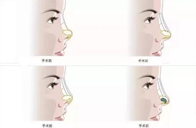 各种不美鼻形的矫正图例