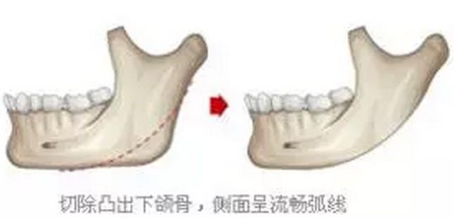 下颌骨关节炎能不能打瘦脸针