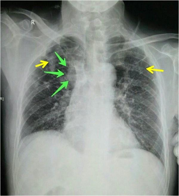 一位61岁男性,年轻时候曾经患过右侧肺结核,每年定期胸片体检
