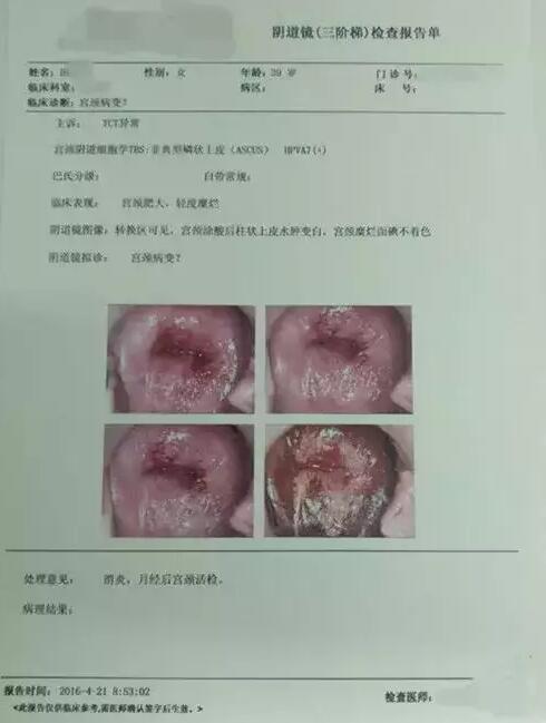 扁平疣的症状_但是,身体出现扁平疣,寻常疣等症状时说明皮肤对hpv的抵抗力和免疫力